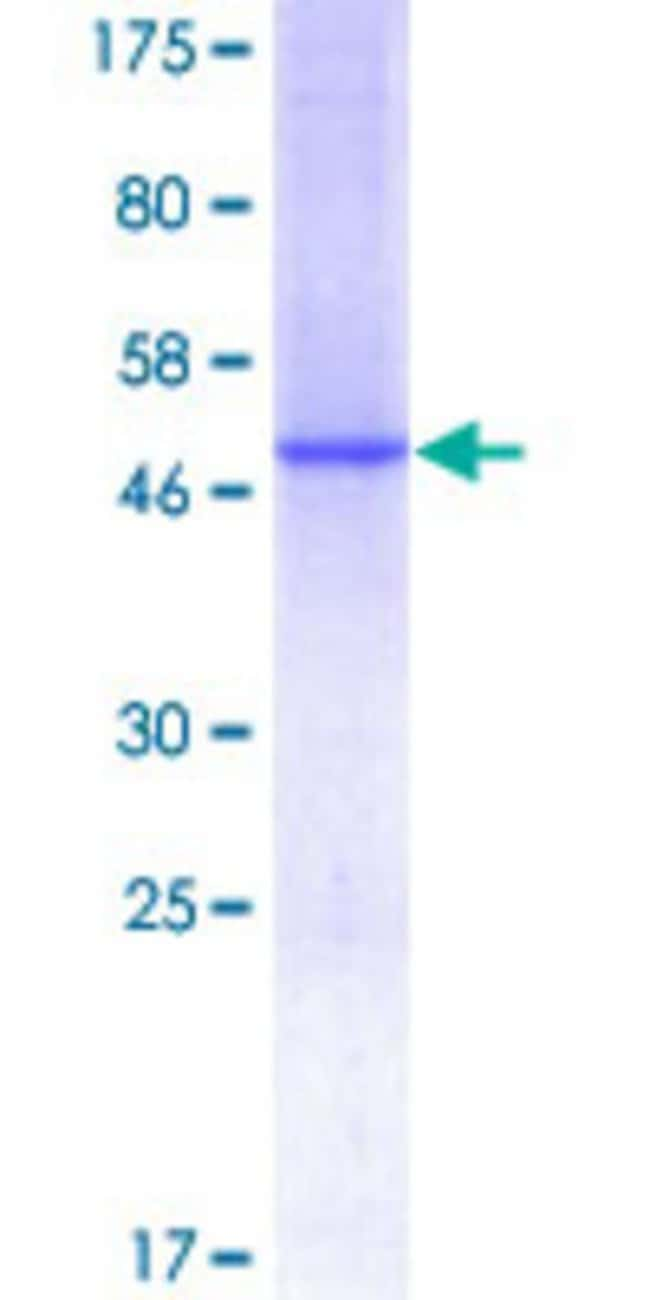 Abnova™Human C1QC Full-length ORF (NP_758957.2, 1 a.a. - 245 a.a.) Recombinant Protein with GST-tag at N-terminal 25μg Abnova™Human C1QC Full-length ORF (NP_758957.2, 1 a.a. - 245 a.a.) Recombinant Protein with GST-tag at N-terminal