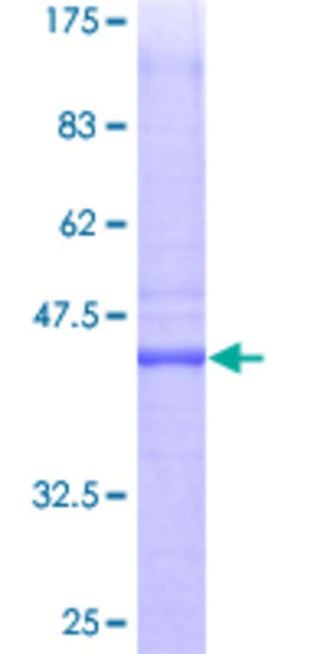 Abnova™ Human PTTG1IP Full-length ORF (AAH20983, 1 a.a. - 180 a.a.) Recombinant Protein with GST-tag at N-terminal 25μg Abnova™ Human PTTG1IP Full-length ORF (AAH20983, 1 a.a. - 180 a.a.) Recombinant Protein with GST-tag at N-terminal