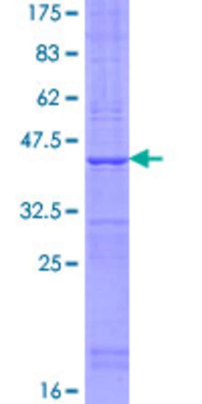 Abnova™Human TMEM50B Full-length ORF (NP_006125.2, 1 a.a. - 158 a.a.) Recombinant Protein with GST-tag at N-terminal 25μg Abnova™Human TMEM50B Full-length ORF (NP_006125.2, 1 a.a. - 158 a.a.) Recombinant Protein with GST-tag at N-terminal