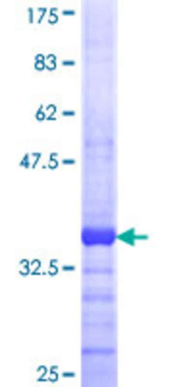 Abnova™Human MPPED1 Partial ORF (NP_001576, 34 a.a. - 123 a.a.) Recombinant Protein with GST-tag at N-terminal 25μg Abnova™Human MPPED1 Partial ORF (NP_001576, 34 a.a. - 123 a.a.) Recombinant Protein with GST-tag at N-terminal