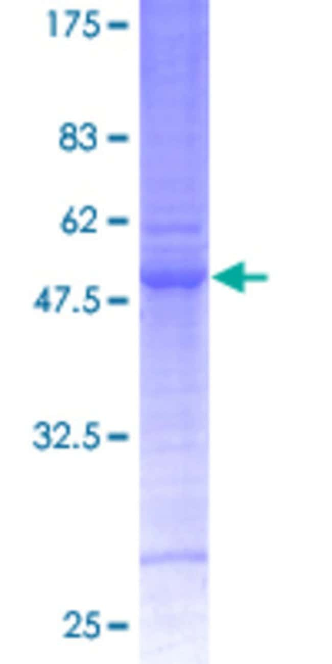 Abnova™ Human CA7 Full-length ORF (AAH33865, 1 a.a. - 264 a.a.) Recombinant Protein with GST-tag at N-terminal 10μg Abnova™ Human CA7 Full-length ORF (AAH33865, 1 a.a. - 264 a.a.) Recombinant Protein with GST-tag at N-terminal