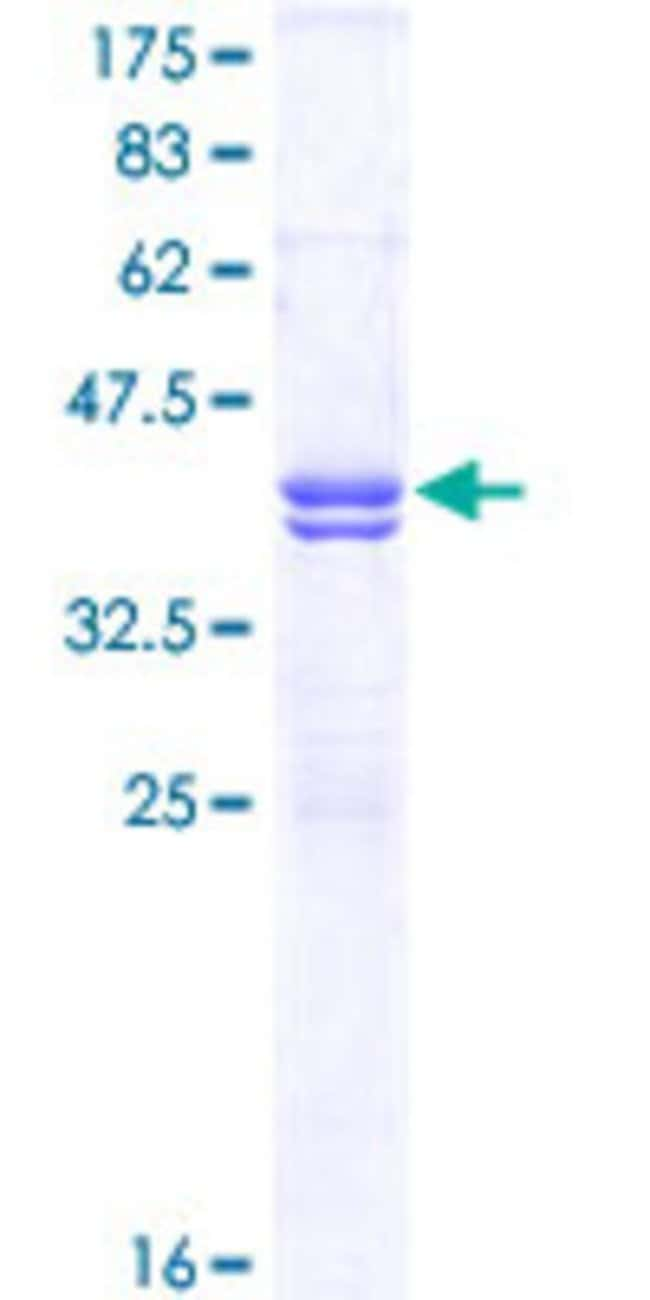 Abnova™Human CACNA1C Partial ORF (NP_000710, 2039 a.a. - 2138 a.a.) Recombinant Protein with GST-tag at N-terminal 25μg Abnova™Human CACNA1C Partial ORF (NP_000710, 2039 a.a. - 2138 a.a.) Recombinant Protein with GST-tag at N-terminal