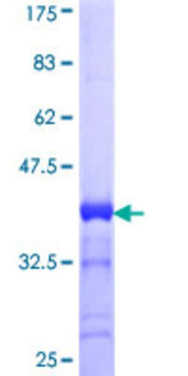Abnova™Human CACNA1S Partial ORF (NP_000060, 1743 a.a. - 1838 a.a.) Recombinant Protein with GST-tag at N-terminal 10μg Abnova™Human CACNA1S Partial ORF (NP_000060, 1743 a.a. - 1838 a.a.) Recombinant Protein with GST-tag at N-terminal