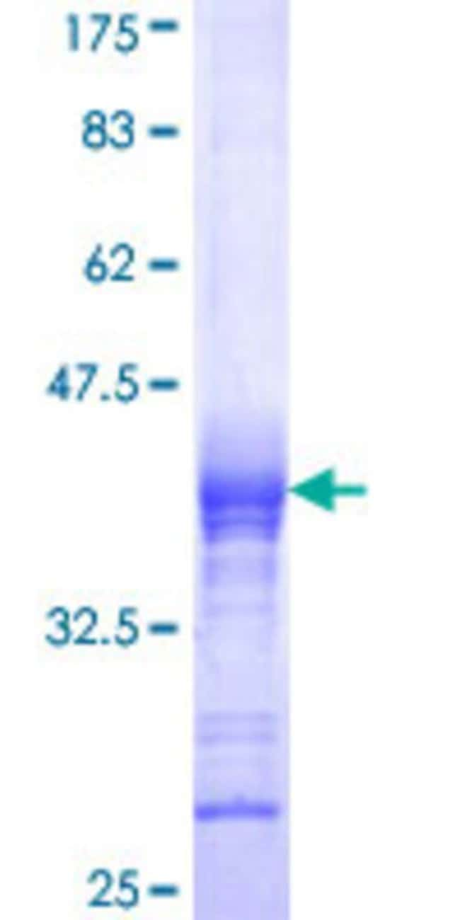 Abnova™Human CACNB2 Partial ORF (NP_963890, 213 a.a. - 301 a.a.) Recombinant Protein with GST-tag at N-terminal 10μg Abnova™Human CACNB2 Partial ORF (NP_963890, 213 a.a. - 301 a.a.) Recombinant Protein with GST-tag at N-terminal