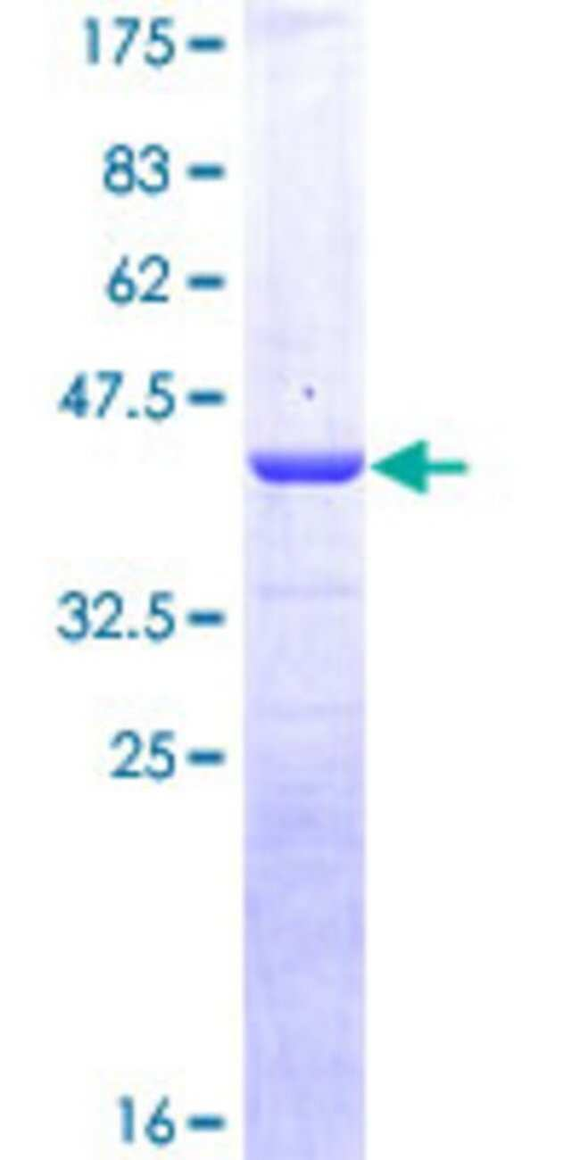 Abnova™Human CALCA Full-length ORF (NP_001732.1, 1 a.a. - 141 a.a.) Recombinant Protein with GST-tag at N-terminal 10μg Abnova™Human CALCA Full-length ORF (NP_001732.1, 1 a.a. - 141 a.a.) Recombinant Protein with GST-tag at N-terminal