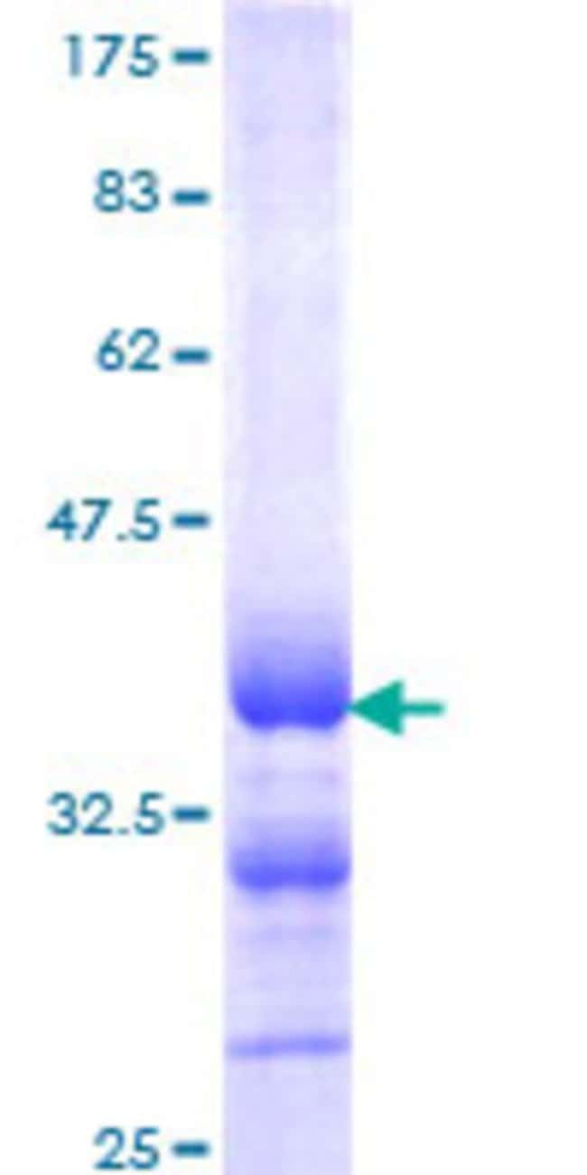 Abnova™Human CALCA Partial ORF (NP_001732, 52 a.a. - 141 a.a.) Recombinant Protein with GST-tag at N-terminal 10μg Abnova™Human CALCA Partial ORF (NP_001732, 52 a.a. - 141 a.a.) Recombinant Protein with GST-tag at N-terminal