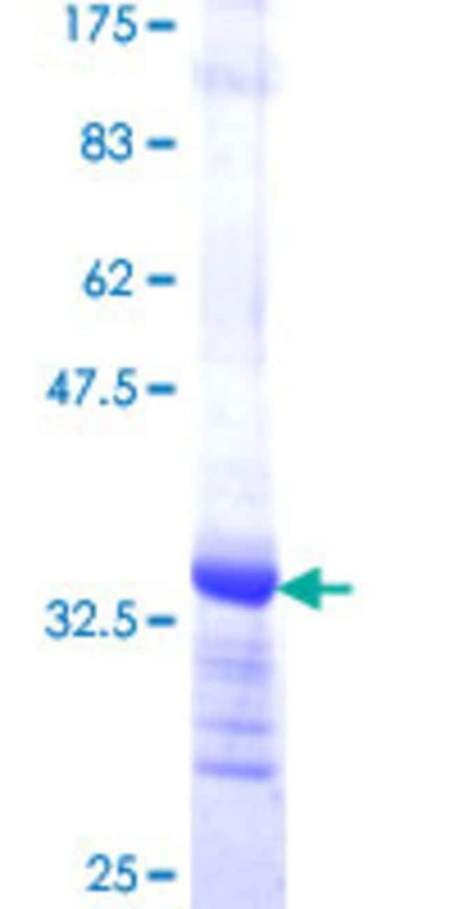 Abnova™Human CAPZA2 Partial ORF (NP_006127, 111 a.a. - 169 a.a.) Recombinant Protein with GST-tag at N-terminal 10μg Abnova™Human CAPZA2 Partial ORF (NP_006127, 111 a.a. - 169 a.a.) Recombinant Protein with GST-tag at N-terminal