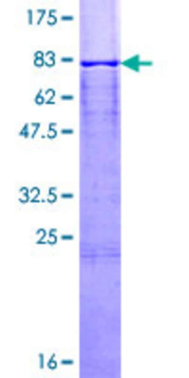 Abnova™Human CASQ1 Full-length ORF (NP_001222.2, 1 a.a. - 390 a.a.) Recombinant Protein with GST-tag at N-terminal 25μg Abnova™Human CASQ1 Full-length ORF (NP_001222.2, 1 a.a. - 390 a.a.) Recombinant Protein with GST-tag at N-terminal