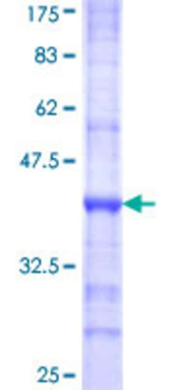Abnova™Human CASR Partial ORF (NP_000379, 21 a.a. - 120 a.a.) Recombinant Protein with GST-tag at N-terminal 25μg Abnova™Human CASR Partial ORF (NP_000379, 21 a.a. - 120 a.a.) Recombinant Protein with GST-tag at N-terminal
