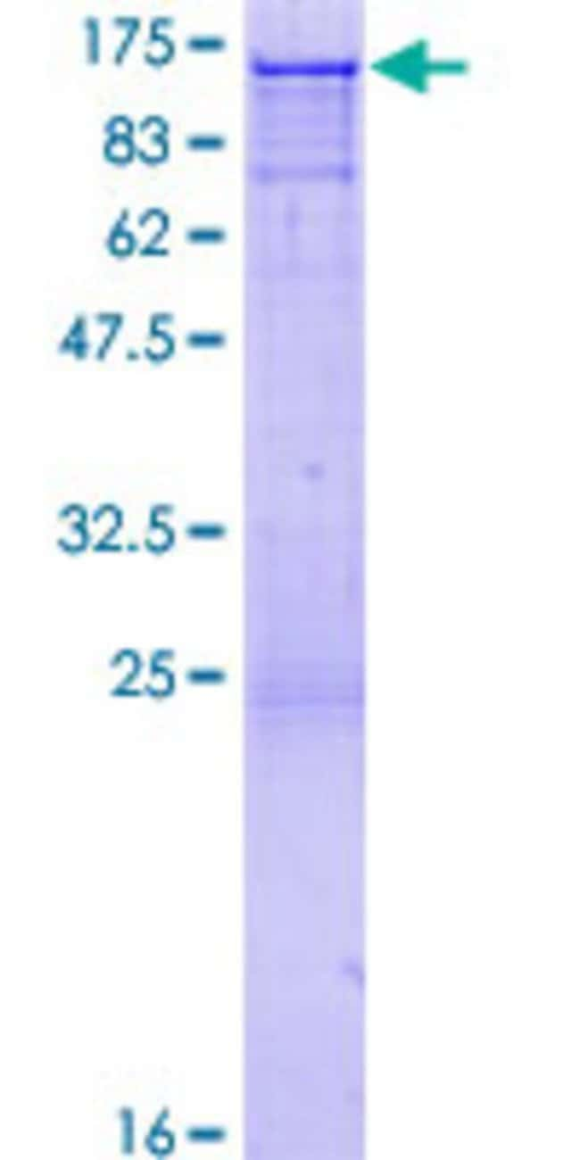 Abnova™Human CBL Full-length ORF (NP_005179.2, 1 a.a. - 906 a.a.) Recombinant Protein with GST-tag at N-terminal 10μg Abnova™Human CBL Full-length ORF (NP_005179.2, 1 a.a. - 906 a.a.) Recombinant Protein with GST-tag at N-terminal