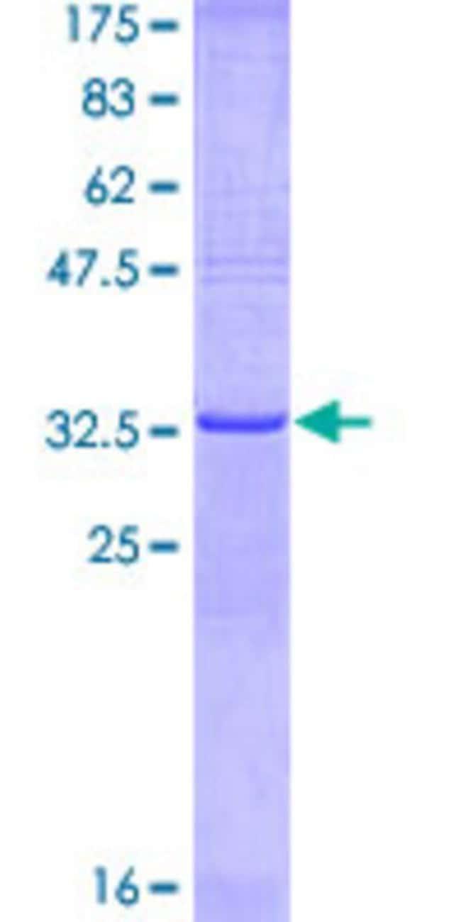 Abnova Human KRIT1 Partial ORF (NP_004903, 637 a.a. - 736 a.a.) Recombinant