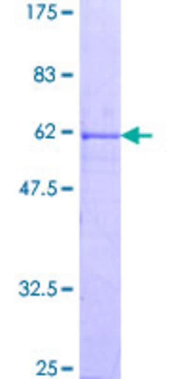 Abnova™ Human CCNG1 Full-length ORF (NP_004051.1, 1 a.a. - 295 a.a.) Recombinant Protein with GST-tag at N-terminal 25μg Abnova™ Human CCNG1 Full-length ORF (NP_004051.1, 1 a.a. - 295 a.a.) Recombinant Protein with GST-tag at N-terminal