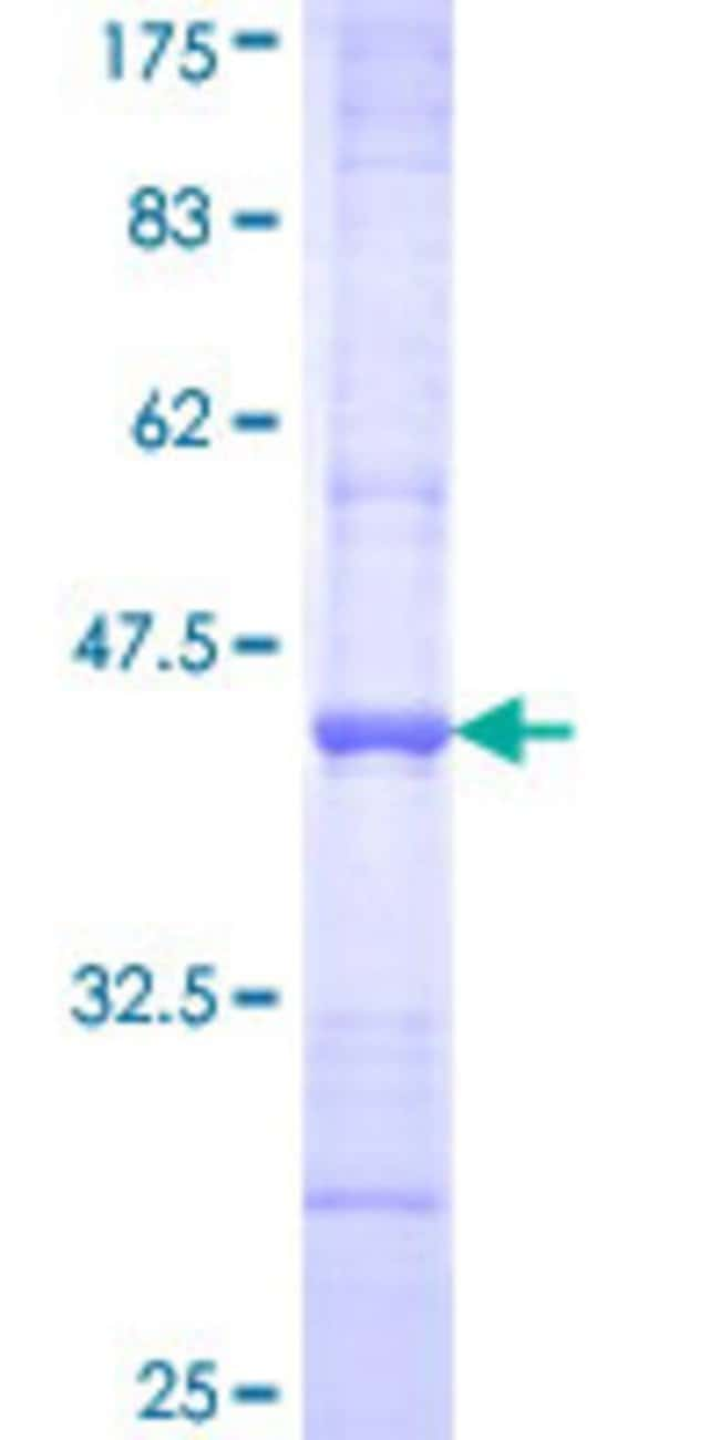 Abnova™Human CCNG1 Partial ORF (AAH00196, 1 a.a. - 110 a.a.) Recombinant Protein with GST-tag at N-terminal 10μg Abnova™Human CCNG1 Partial ORF (AAH00196, 1 a.a. - 110 a.a.) Recombinant Protein with GST-tag at N-terminal