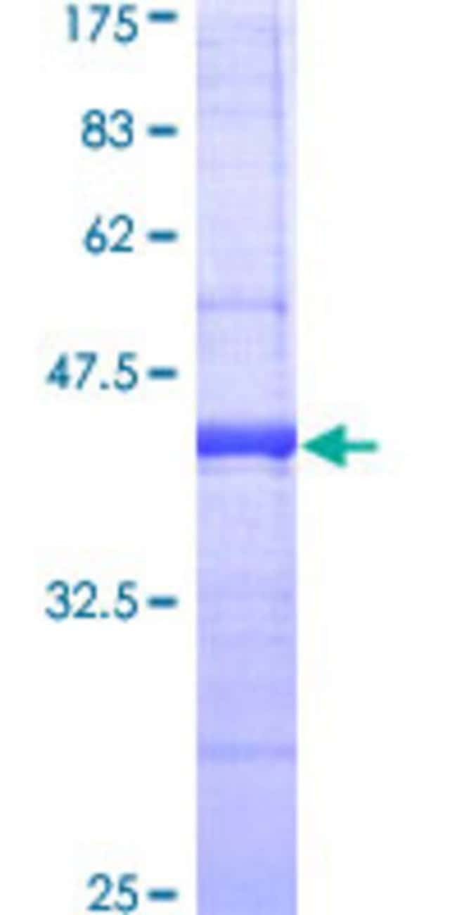 Abnova™Human CD2 Partial ORF (AAH33583, 101 a.a. - 205 a.a.) Recombinant Protein with GST-tag at N-terminal 25μg Abnova™Human CD2 Partial ORF (AAH33583, 101 a.a. - 205 a.a.) Recombinant Protein with GST-tag at N-terminal