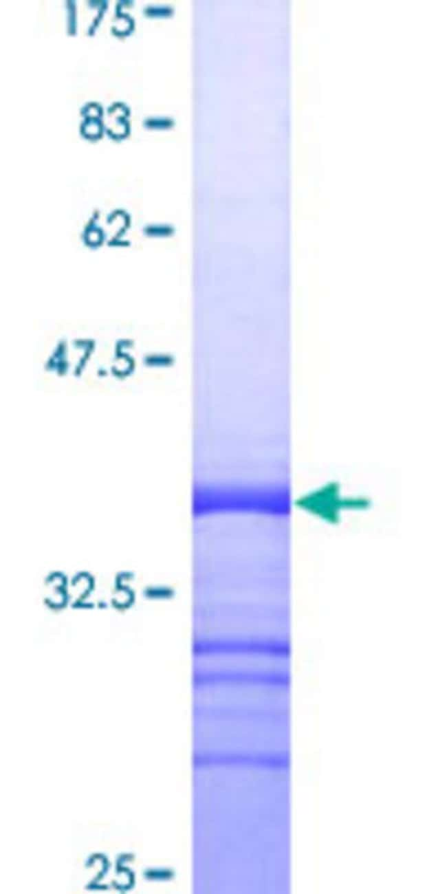 Abnova™Human CD9 Partial ORF (AAH11988, 112 a.a. - 195 a.a.) Recombinant Protein with GST-tag at N-terminal 10μg Abnova™Human CD9 Partial ORF (AAH11988, 112 a.a. - 195 a.a.) Recombinant Protein with GST-tag at N-terminal