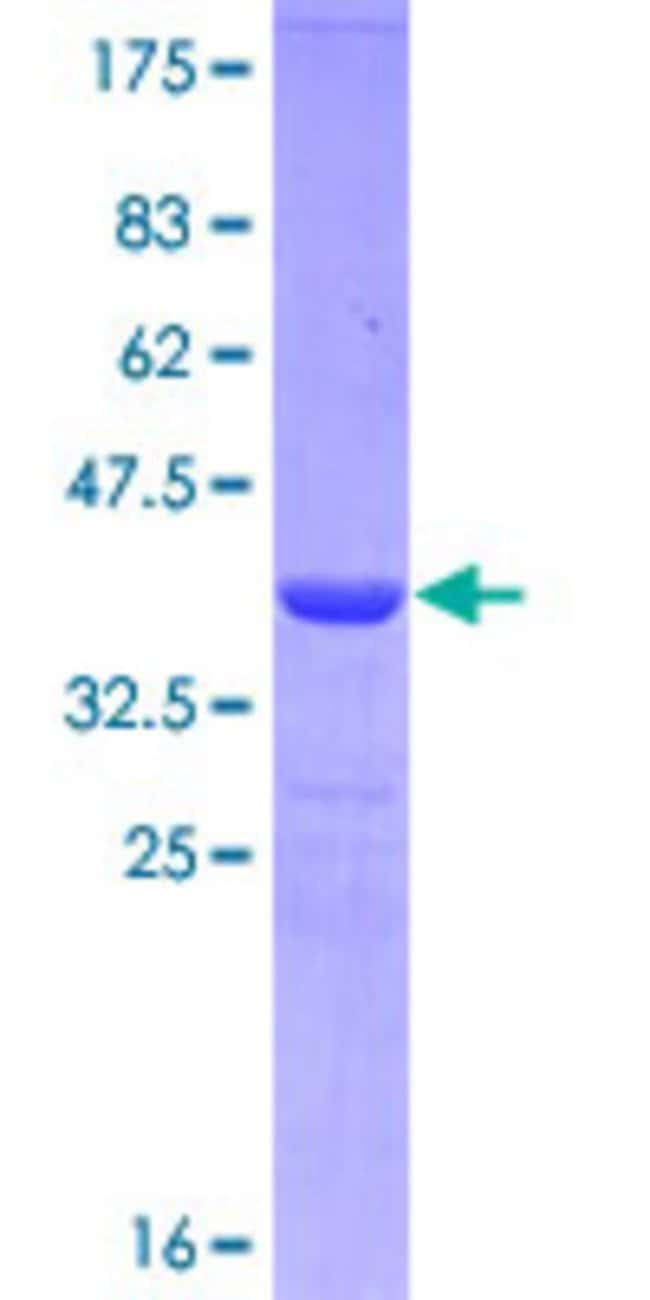 Abnova™Human CD19 Partial ORF (NP_001761, 98 a.a. - 187 a.a.) Recombinant Protein with GST-tag at N-terminal 25μg Abnova™Human CD19 Partial ORF (NP_001761, 98 a.a. - 187 a.a.) Recombinant Protein with GST-tag at N-terminal