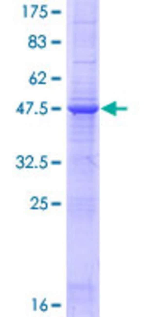 Abnova™ Human TNFSF8 Full-length ORF (NP_001235.1, 1 a.a. - 234 a.a.) Recombinant Protein with GST-tag at N-terminal 10μg Abnova™ Human TNFSF8 Full-length ORF (NP_001235.1, 1 a.a. - 234 a.a.) Recombinant Protein with GST-tag at N-terminal
