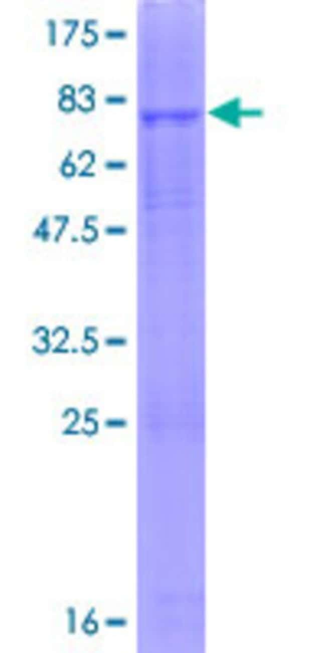 Abnova™Human ENTPD6 Full-length ORF (AAH25980.1, 1 a.a. - 483 a.a.) Recombinant Protein with GST-tag at N-terminal 25μg Abnova™Human ENTPD6 Full-length ORF (AAH25980.1, 1 a.a. - 483 a.a.) Recombinant Protein with GST-tag at N-terminal