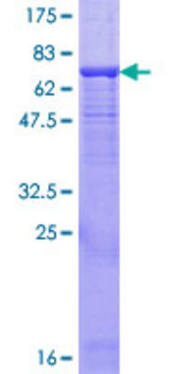 Abnova™Human ENTPD3 Full-length ORF (AAH29869.1, 1 a.a. - 452 a.a.) Recombinant Protein with GST-tag at N-terminal 10μg Abnova™Human ENTPD3 Full-length ORF (AAH29869.1, 1 a.a. - 452 a.a.) Recombinant Protein with GST-tag at N-terminal