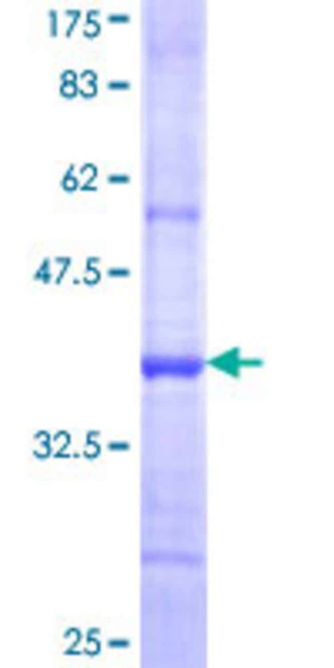 Abnova™Human ENTPD5 Partial ORF (NP_001240, 319 a.a. - 400 a.a.) Recombinant Protein with GST-tag at N-terminal 10μg Abnova™Human ENTPD5 Partial ORF (NP_001240, 319 a.a. - 400 a.a.) Recombinant Protein with GST-tag at N-terminal