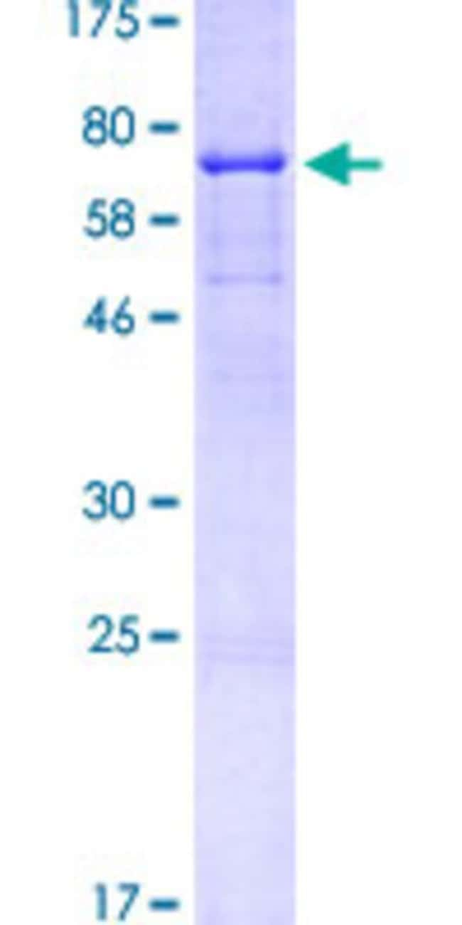 Abnova™Human CD44 Full-length ORF (NP_001001391.1, 1 a.a. - 361 a.a.) Recombinant Protein with GST-tag at N-terminal 25μg Abnova™Human CD44 Full-length ORF (NP_001001391.1, 1 a.a. - 361 a.a.) Recombinant Protein with GST-tag at N-terminal