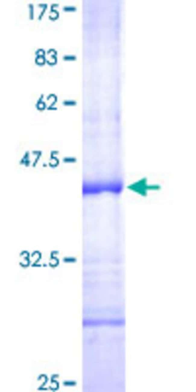 Abnova™Human CD69 Partial ORF (AAH07037, 90 a.a. - 199 a.a.) Recombinant Protein with GST-tag at N-terminal 25μg Abnova™Human CD69 Partial ORF (AAH07037, 90 a.a. - 199 a.a.) Recombinant Protein with GST-tag at N-terminal