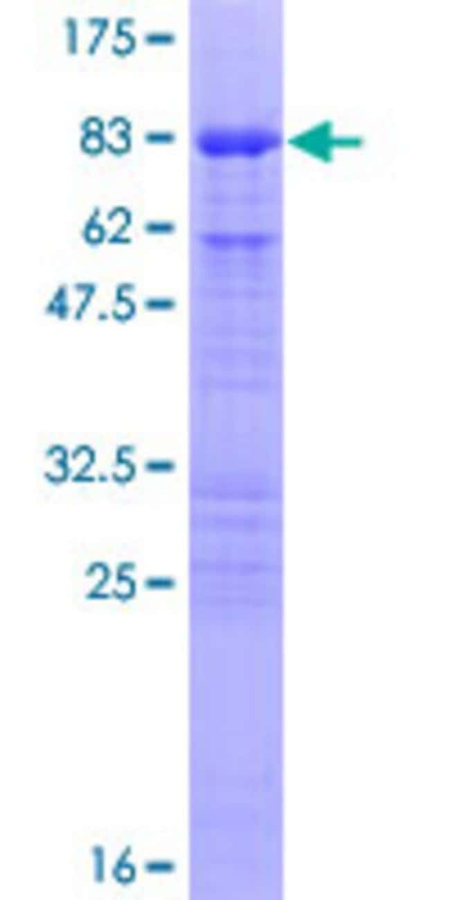 Abnova™Human CDC25C Full-length ORF (AAH19089.1, 1 a.a. - 473 a.a.) Recombinant Protein with GST-tag at N-terminal 25μg Abnova™Human CDC25C Full-length ORF (AAH19089.1, 1 a.a. - 473 a.a.) Recombinant Protein with GST-tag at N-terminal