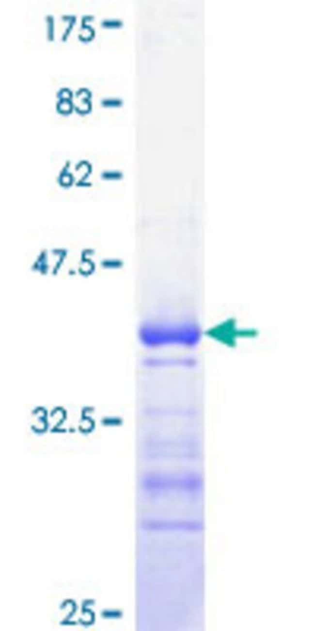 Abnova™Human CDC25C Partial ORF (AAH19089, 21 a.a. - 130 a.a.) Recombinant Protein with GST-tag at N-terminal 10μg Abnova™Human CDC25C Partial ORF (AAH19089, 21 a.a. - 130 a.a.) Recombinant Protein with GST-tag at N-terminal