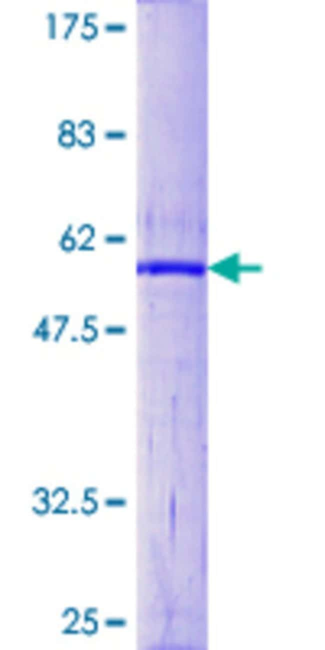 Abnova™Human CDC34 Full-length ORF (NP_004350.1, 1 a.a. - 236 a.a.) Recombinant Protein with GST-tag at N-terminal 25μg Abnova™Human CDC34 Full-length ORF (NP_004350.1, 1 a.a. - 236 a.a.) Recombinant Protein with GST-tag at N-terminal