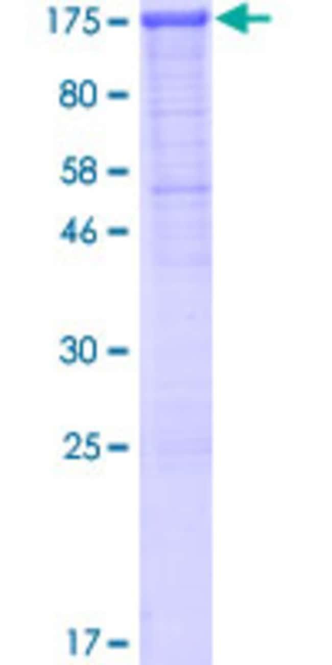 Abnova™Human CDH3 Full-length ORF (AAH41846.1, 1 a.a. - 829 a.a.) Recombinant Protein with GST-tag at N-terminal 25μg Abnova™Human CDH3 Full-length ORF (AAH41846.1, 1 a.a. - 829 a.a.) Recombinant Protein with GST-tag at N-terminal