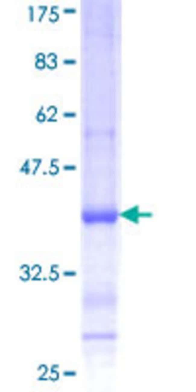 Abnova™Human CDH4 Partial ORF (NP_001785, 635 a.a. - 734 a.a.) Recombinant Protein with GST-tag at N-terminal 25μg Abnova™Human CDH4 Partial ORF (NP_001785, 635 a.a. - 734 a.a.) Recombinant Protein with GST-tag at N-terminal