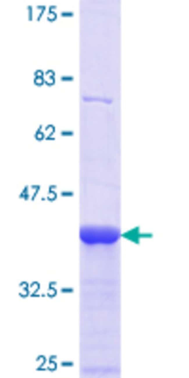 Abnova™Human CDH12 Partial ORF (NP_004052.2, 372 a.a. - 470 a.a.) Recombinant Protein with GST-tag at N-terminal 25μg Abnova™Human CDH12 Partial ORF (NP_004052.2, 372 a.a. - 470 a.a.) Recombinant Protein with GST-tag at N-terminal