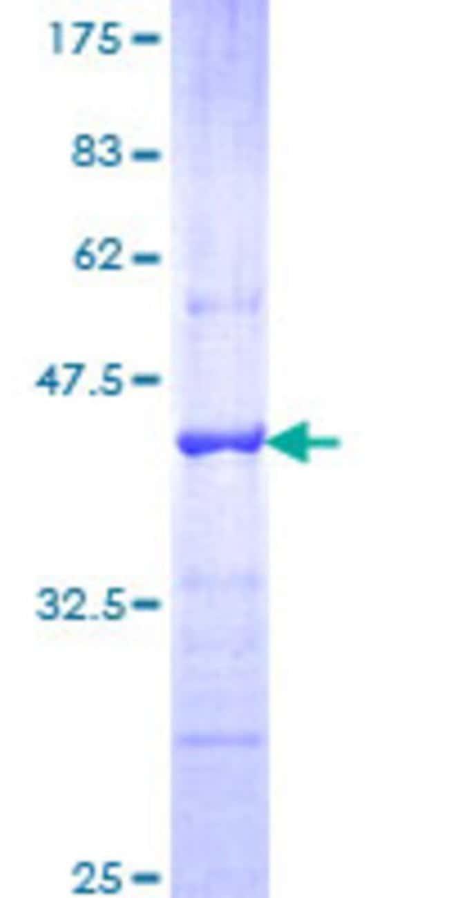 Abnova™Human CDH18 Partial ORF (NP_004925, 467 a.a. - 576 a.a.) Recombinant Protein with GST-tag at N-terminal 25μg Abnova™Human CDH18 Partial ORF (NP_004925, 467 a.a. - 576 a.a.) Recombinant Protein with GST-tag at N-terminal
