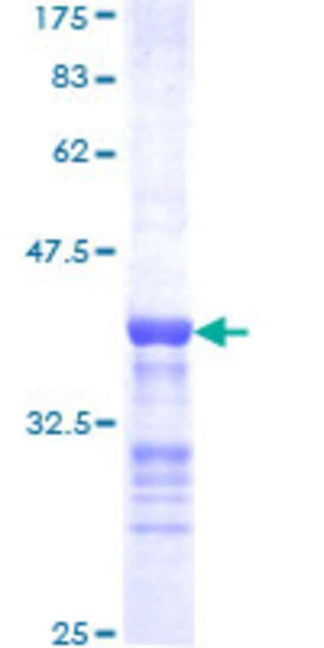 Abnova™Human CDK3 Partial ORF (NP_001249, 206 a.a. - 305 a.a.) Recombinant Protein with GST-tag at N-terminal 25μg Abnova™Human CDK3 Partial ORF (NP_001249, 206 a.a. - 305 a.a.) Recombinant Protein with GST-tag at N-terminal
