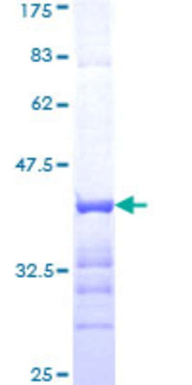 Abnova™Human CDK6 Partial ORF (AAH52264, 226 a.a. - 326 a.a.) Recombinant Protein with GST-tag at N-terminal 25μg Abnova™Human CDK6 Partial ORF (AAH52264, 226 a.a. - 326 a.a.) Recombinant Protein with GST-tag at N-terminal