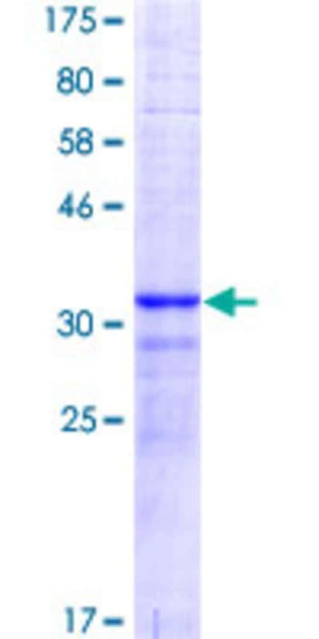 Abnova™Human CDKN1A Partial ORF (AAH00312.1, 65 a.a. - 164 a.a.) Recombinant Protein with GST-tag at N-terminal 10μg Abnova™Human CDKN1A Partial ORF (AAH00312.1, 65 a.a. - 164 a.a.) Recombinant Protein with GST-tag at N-terminal