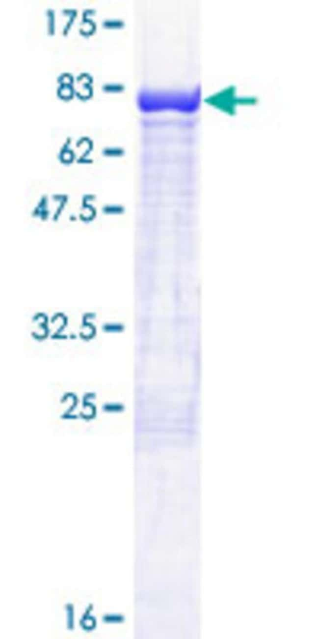 Abnova™Human CDR2 Full-length ORF (NP_001793.1, 1 a.a. - 454 a.a.) Recombinant Protein with GST-tag at N-terminal 25μg Abnova™Human CDR2 Full-length ORF (NP_001793.1, 1 a.a. - 454 a.a.) Recombinant Protein with GST-tag at N-terminal