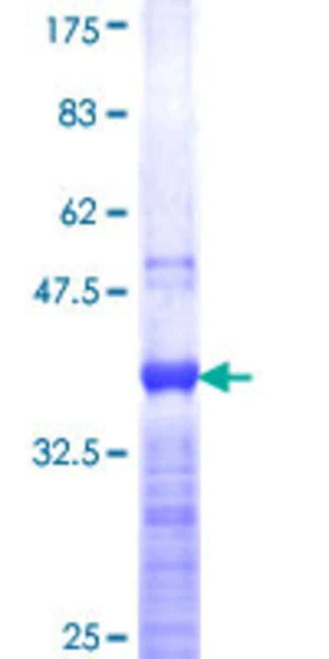 Abnova™Human CDX1 Partial ORF (NP_001795, 126 a.a. - 215 a.a.) Recombinant Protein with GST-tag at N-terminal 25μg Abnova™Human CDX1 Partial ORF (NP_001795, 126 a.a. - 215 a.a.) Recombinant Protein with GST-tag at N-terminal