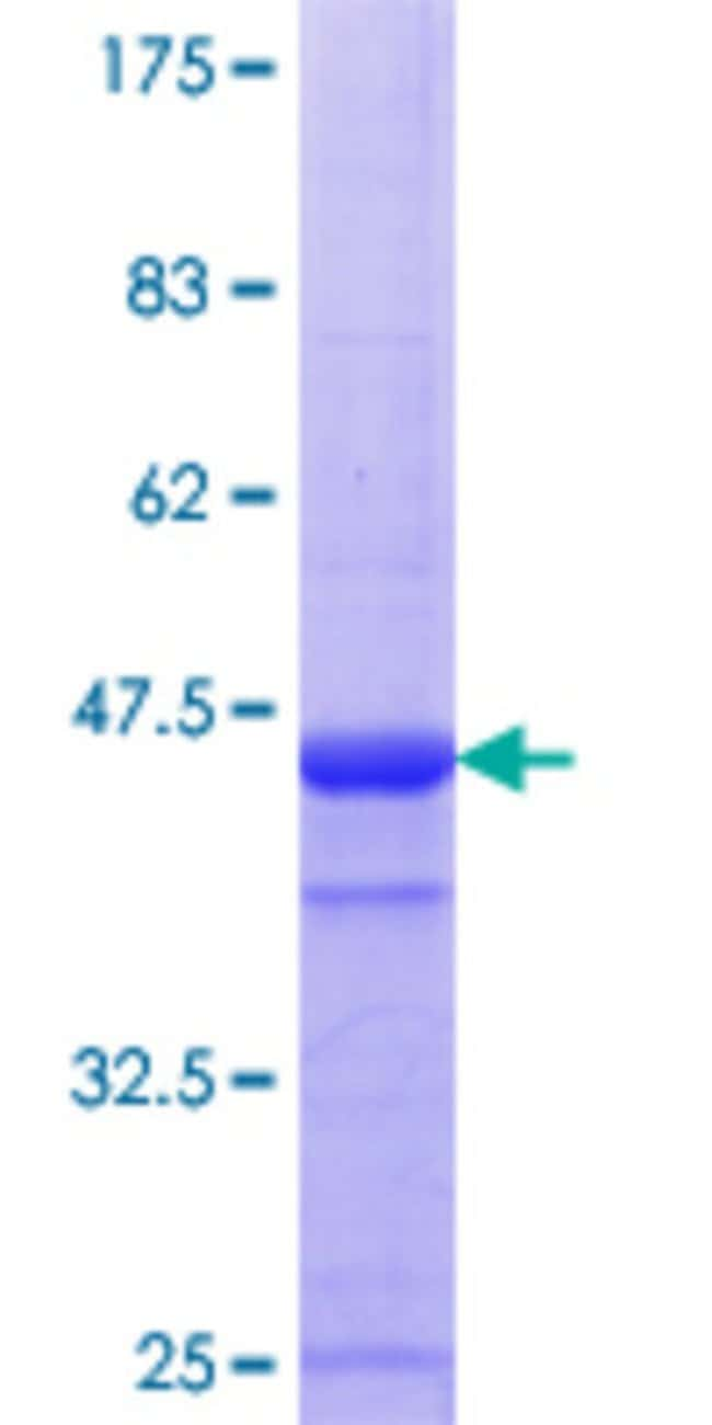 Abnova™Human CLGN Partial ORF (NP_004353.1, 21 a.a. - 120 a.a.) Recombinant Protein with GST-tag at N-terminal 10μg Abnova™Human CLGN Partial ORF (NP_004353.1, 21 a.a. - 120 a.a.) Recombinant Protein with GST-tag at N-terminal
