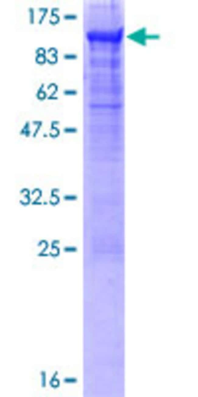 Abnova™Human CEACAM5 Full-length ORF (AAH34671.1, 1 a.a. - 702 a.a.) Recombinant Protein with GST-tag at N-terminal 10μg Abnova™Human CEACAM5 Full-length ORF (AAH34671.1, 1 a.a. - 702 a.a.) Recombinant Protein with GST-tag at N-terminal