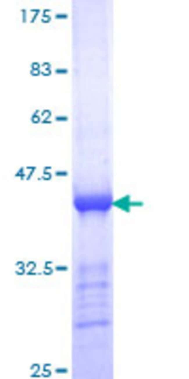 Abnova™Human CENPE Partial ORF (NP_001804, 309 a.a. - 419 a.a.) Recombinant Protein with GST-tag at N-terminal 25μg Abnova™Human CENPE Partial ORF (NP_001804, 309 a.a. - 419 a.a.) Recombinant Protein with GST-tag at N-terminal