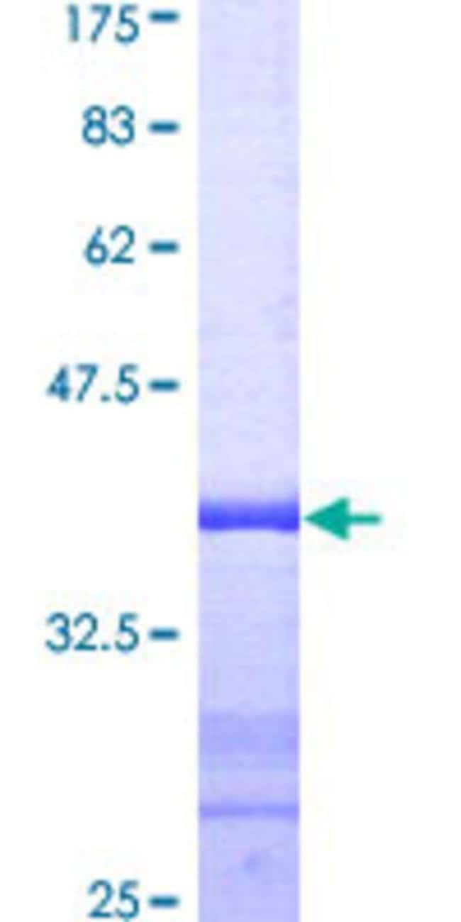 Abnova™Human CETN1 Partial ORF (AAH29515, 1 a.a. - 100 a.a.) Recombinant Protein with GST-tag at N-terminal 25μg Abnova™Human CETN1 Partial ORF (AAH29515, 1 a.a. - 100 a.a.) Recombinant Protein with GST-tag at N-terminal