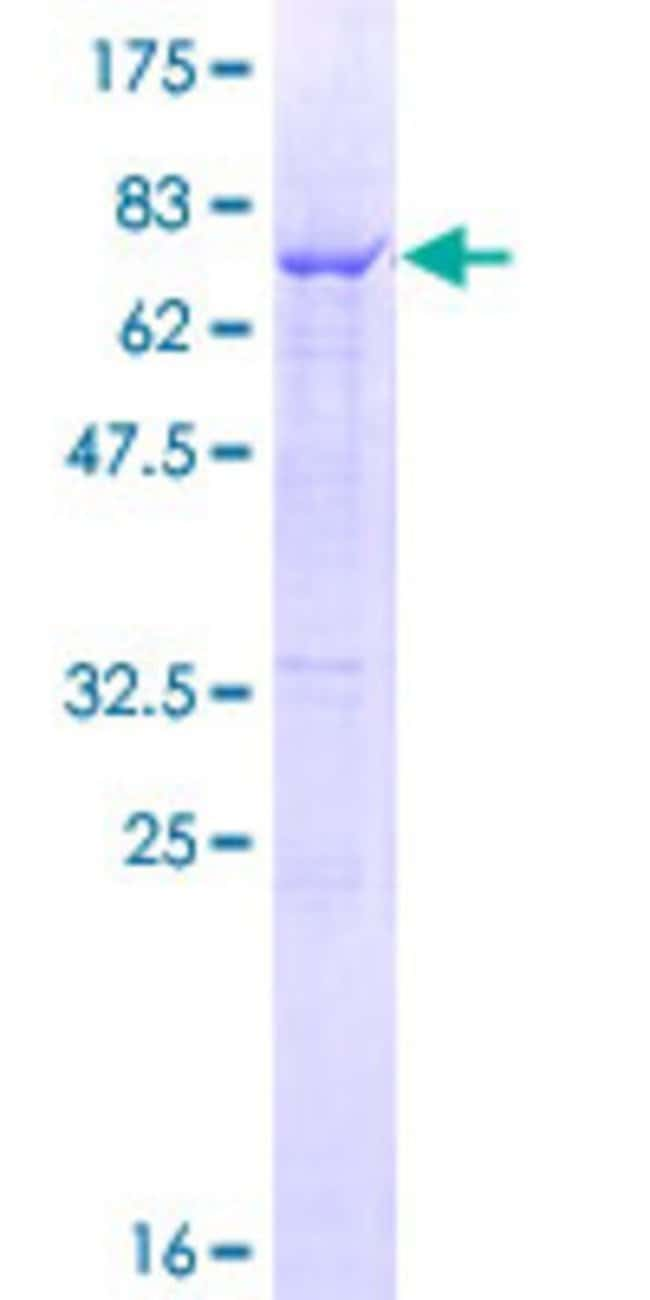 Abnova™Human CTSC Full-length ORF (NP_001805.1, 1 a.a. - 463 a.a.) Recombinant Protein with GST-tag at N-terminal 25μg Abnova™Human CTSC Full-length ORF (NP_001805.1, 1 a.a. - 463 a.a.) Recombinant Protein with GST-tag at N-terminal