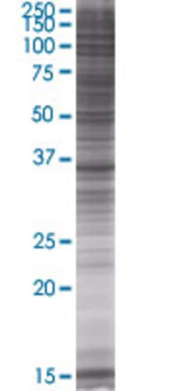 AbnovaAKR1C4 293T Cell Transient Overexpression Lysate (Denatured) 100μL:Protein