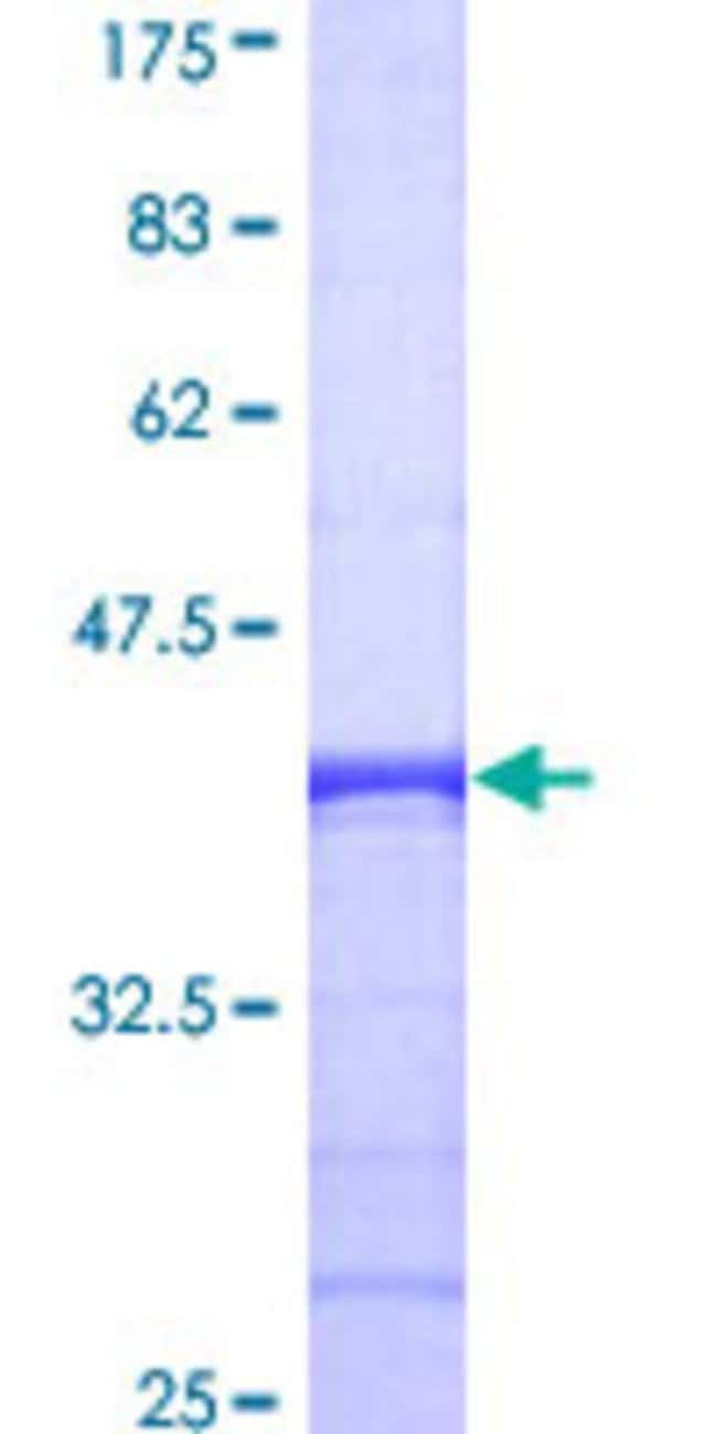 Abnova™Human CHN1 Partial ORF (AAH11393, 91 a.a. - 200 a.a.) Recombinant Protein with GST-tag at N-terminal 10μg Abnova™Human CHN1 Partial ORF (AAH11393, 91 a.a. - 200 a.a.) Recombinant Protein with GST-tag at N-terminal