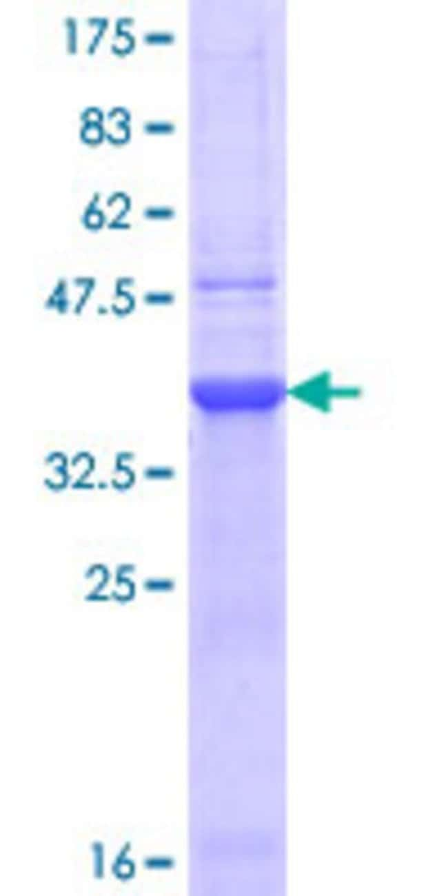 Abnova™Human CHRNB2 Partial ORF (NP_000739.1, 26 a.a. - 130 a.a.) Recombinant Protein with GST-tag at N-terminal 25μg Abnova™Human CHRNB2 Partial ORF (NP_000739.1, 26 a.a. - 130 a.a.) Recombinant Protein with GST-tag at N-terminal