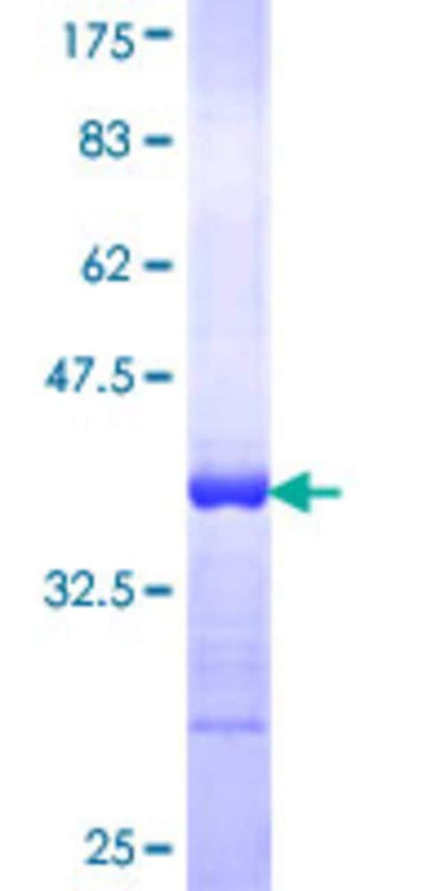 Abnova™Human CKMT1B Partial ORF (NP_066270, 327 a.a. - 417 a.a.) Recombinant Protein with GST-tag at N-terminal 25μg Abnova™Human CKMT1B Partial ORF (NP_066270, 327 a.a. - 417 a.a.) Recombinant Protein with GST-tag at N-terminal