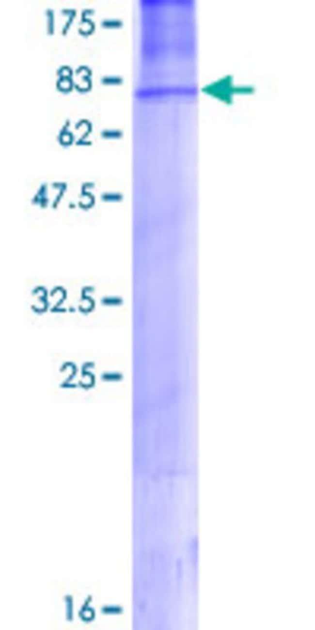 AbnovaHuman AP2M1 Full-length ORF (NP_004059.2, 1 a.a. - 435 a.a.) Recombinant