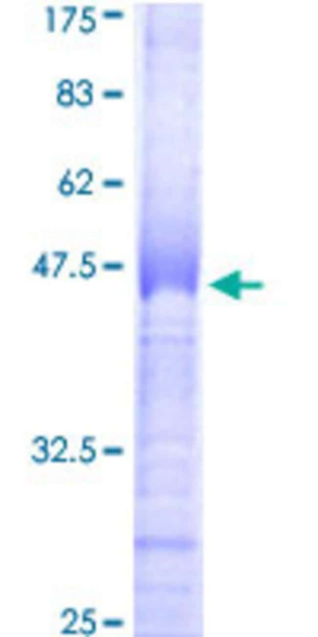 Abnova™ Human CLK2 Partial ORF (AAH14067, 1 a.a. - 120 a.a.) Recombinant Protein with GST-tag at N-terminal 25μg Abnova™ Human CLK2 Partial ORF (AAH14067, 1 a.a. - 120 a.a.) Recombinant Protein with GST-tag at N-terminal