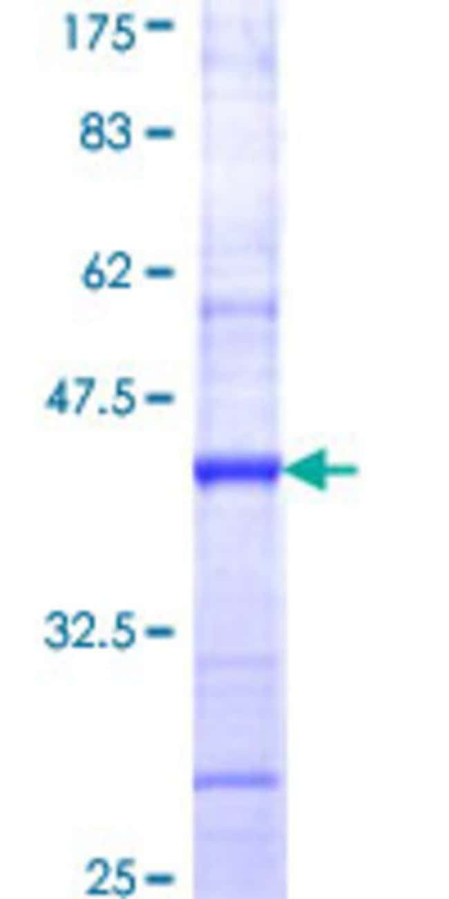 Abnova™Human CNTFR Partial ORF (NP_671693, 47 a.a. - 158 a.a.) Recombinant Protein with GST-tag at N-terminal 10μg Abnova™Human CNTFR Partial ORF (NP_671693, 47 a.a. - 158 a.a.) Recombinant Protein with GST-tag at N-terminal